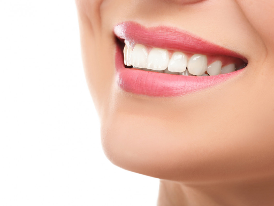 How will bonding change your smile?